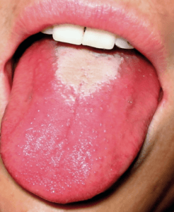 what-does-a-healthy-tongue-look-like-3-signs-to-look-for