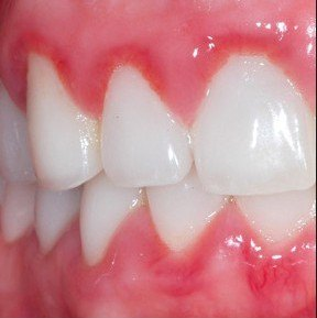 home-treatment-for-gum-disease-clinically-proven