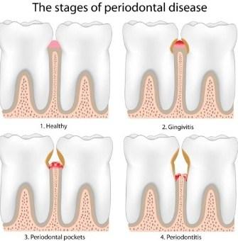 Stages of gum disease