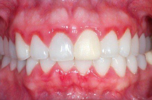 inflammation of gum disease