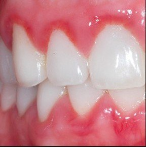 Gum Disease and Treatment