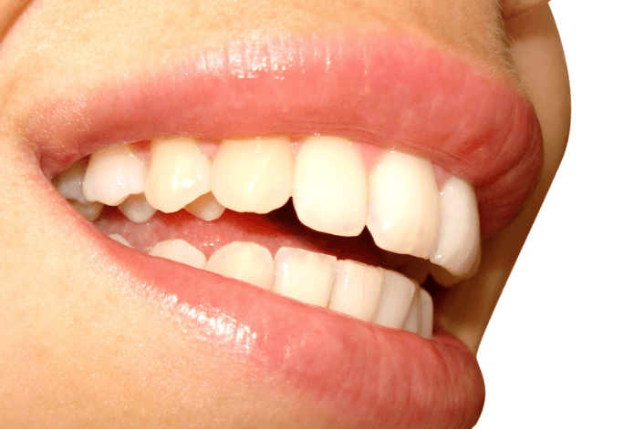 Healthy smile, the best electric toothbrush