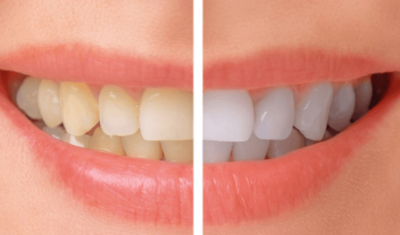 Dark teeth versus white teeth
