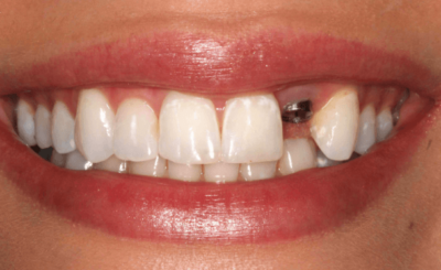 Dental implant of front tooth