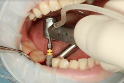 Dental Implants (How Much Will Dental Implants Cost?)