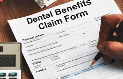 Dental Implants (How Much Will They Cost?)
