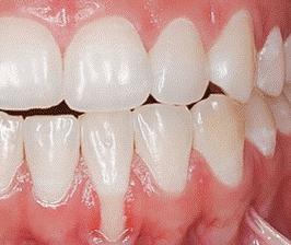 Gum Recession