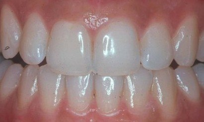 Clean teeth with Waterpik water flosser