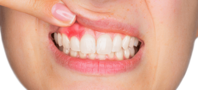 Gum Disease-You Have It-Now What?