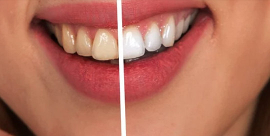 How to remove coffee stains from your teeth-before and after photo of bleaching of teeth
