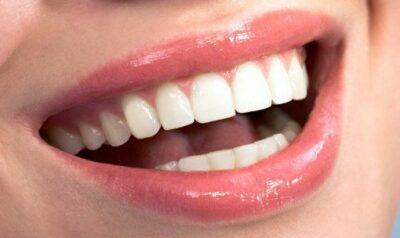 Clean healthy smiling teeth