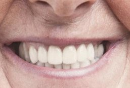 Patient smiling wearing a denture