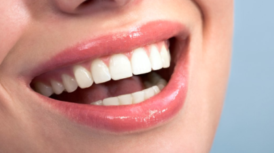 Can you use hydrogen peroxide to whiten teeth?